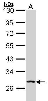 DUSP2 Antibody (PA5-28775) in Western Blot