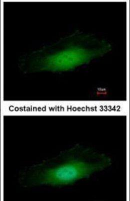 PPP4C Antibody (PA5-28786)