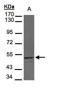 UHMK1 Antibody (PA5-28796) in Western Blot