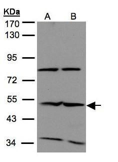 IFIT2 Antibody (PA5-28800) in Western Blot