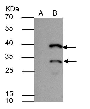 HES1 Antibody (PA5-28802) in Immunoprecipitation