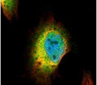 Syntenin 1 Antibody (PA5-28813) in Immunofluorescence