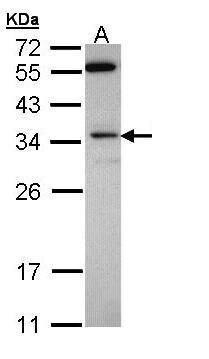 Syntenin 1 Antibody (PA5-28813) in Western Blot