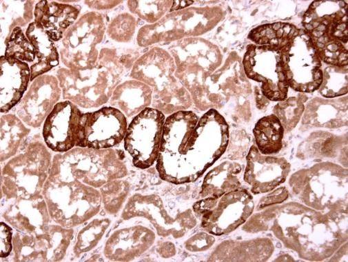INHBB Antibody (PA5-28814) in Immunohistochemistry (Paraffin)