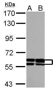 GDF5 Antibody (PA5-28815) in Western Blot