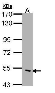 CHRND Antibody (PA5-28829) in Western Blot