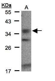 Ephrin B3 Antibody (PA5-28831) in Western Blot
