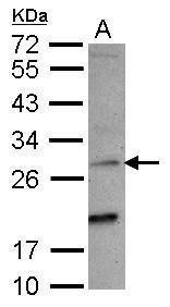 NKG2C Antibody (PA5-28837) in Western Blot