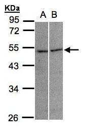 GLRA3 Antibody (PA5-28840) in Western Blot