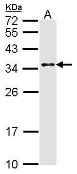 CRSP9 Antibody (PA5-28841) in Western Blot