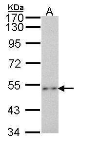 P2X2 Antibody (PA5-28845) in Western Blot