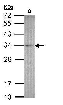 MED4 Antibody (PA5-28847) in Western Blot