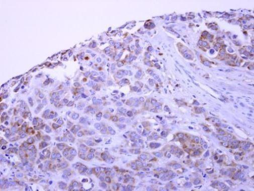 PACSIN1 Antibody (PA5-28852)