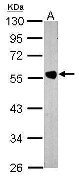 PACSIN1 Antibody (PA5-28852) in Western Blot