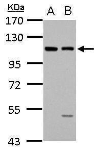 EphB4 Antibody (PA5-28866) in Western Blot