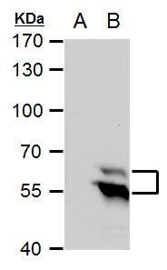 TdT Antibody (PA5-28880)