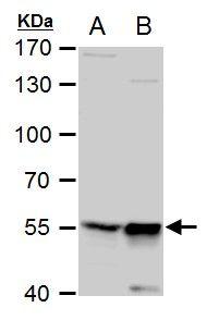 TdT Antibody (PA5-28880) in Western Blot