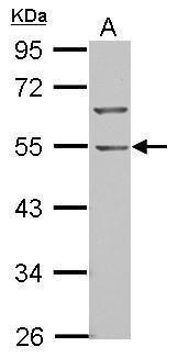 BTBD10 Antibody (PA5-28889) in Western Blot