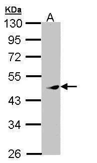 PRAK Antibody (PA5-28890)