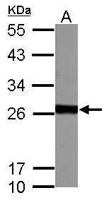 GSTM5 Antibody (PA5-28892) in Western Blot
