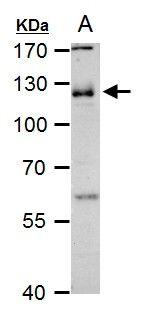 CD146 Antibody (PA5-28893) in Western Blot