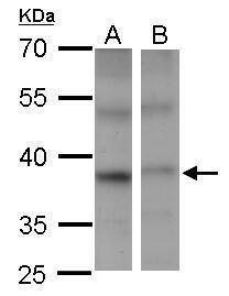 PSTPIP2 Antibody (PA5-28913) in Western Blot