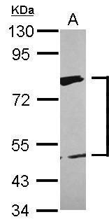 XPD Antibody (PA5-28916) in Western Blot