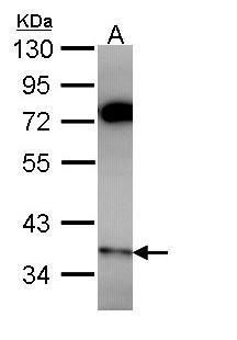 PPP6C Antibody (PA5-28919) in Western Blot