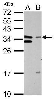 GTF2E2 Antibody (PA5-28923) in Western Blot