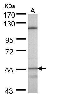 CYP4B1 Antibody (PA5-28925) in Western Blot