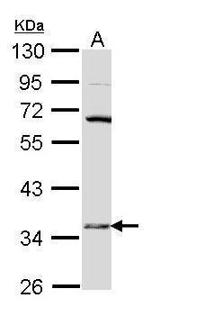HSD17B6 Antibody (PA5-28926) in Western Blot
