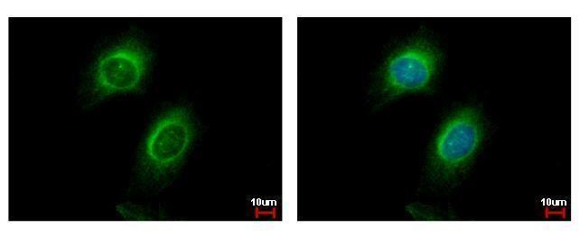 CD130 Antibody (PA5-28932) in Immunofluorescence