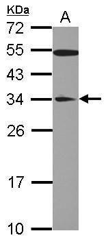 GAS41 Antibody (PA5-28935) in Western Blot