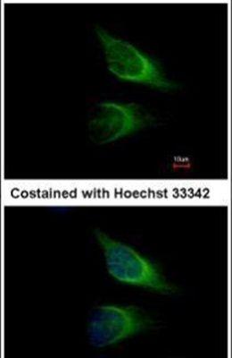 SNAP23 Antibody (PA5-28936) in Immunofluorescence