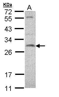 SNAP23 Antibody (PA5-28936) in Western Blot
