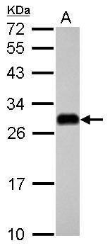 ETHE1 Antibody (PA5-28938) in Western Blot