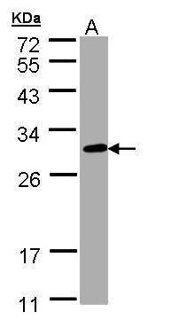 CHIC2 Antibody (PA5-28942) in Western Blot