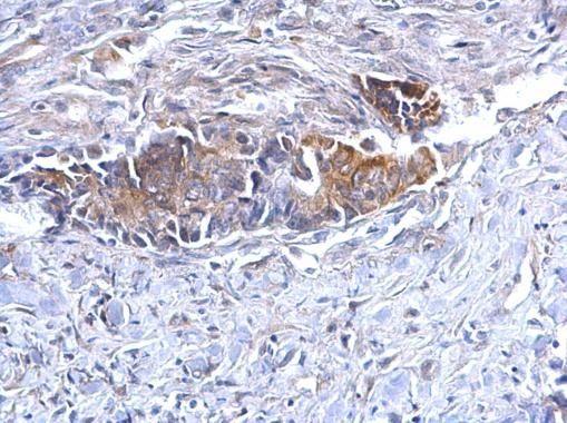 Bcl-10 Antibody (PA5-28946) in Immunohistochemistry (Paraffin)