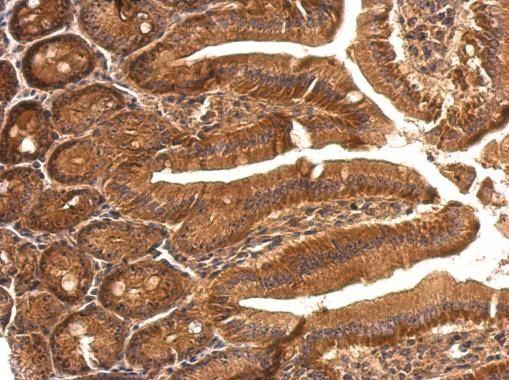 SBDS Antibody (PA5-28950) in Immunohistochemistry (Paraffin)