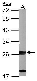 SBDS Antibody (PA5-28950) in Western Blot