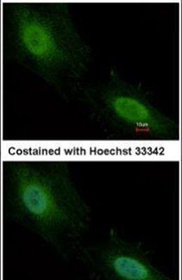 Aprataxin Antibody (PA5-28952) in Immunofluorescence