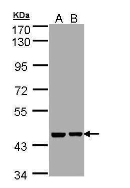 Aprataxin Antibody (PA5-28952) in Western Blot
