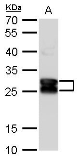 CRYBA1 Antibody (PA5-28954) in Western Blot
