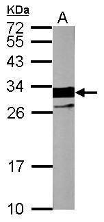 Cardiac Troponin I Antibody (PA5-28964) in Western Blot