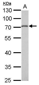 MMP16 Antibody (PA5-28966) in Western Blot