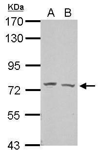GRHL2 Antibody (PA5-28973) in Western Blot