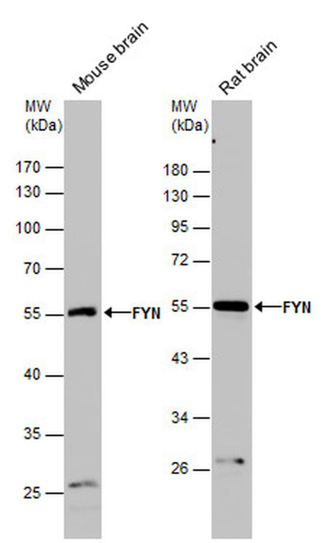 Fyn Antibody (PA5-28975) in Western Blot