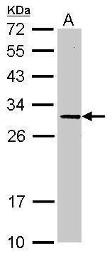 ORNT1 Antibody (PA5-28976) in Western Blot