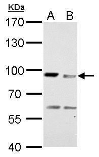 MAD1 Antibody (PA5-28991) in Western Blot