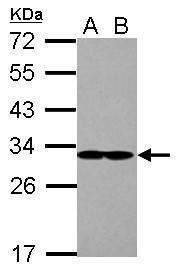 eIF2b alpha Antibody (PA5-28992) in Western Blot